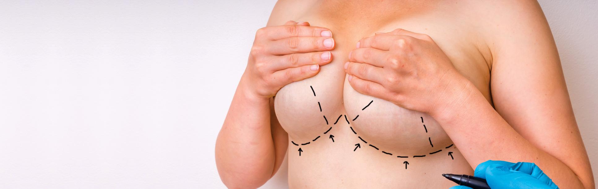 30% reducere la operația de mărire a sânilor cu implanturi mamare Arion,