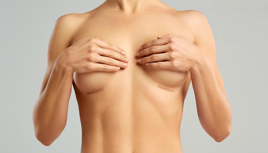 Liftingul sânilor este operația chirurgicală prin care se îndepărtează excesul tegumentar de la nivelul sânilor