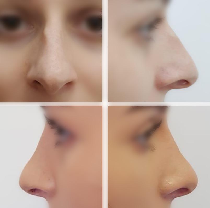 Rinoplastia sau rinocorecția intervenție de chirurgie estetică prin care se poate modifica mărimea nasului și corecta forma nasului