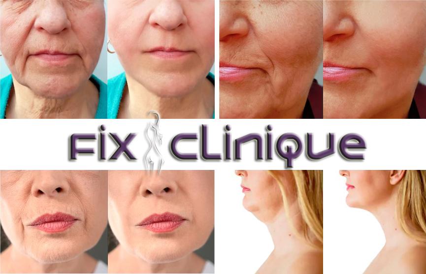 Liftingul facial și liftingul cervicofacial, singurele soluții permanente pentru ridurile de gravitație