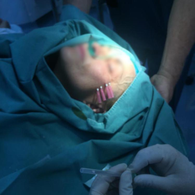Procedură nechirurgicală pentru liftingul facial cu fire resorbabile de suspensie