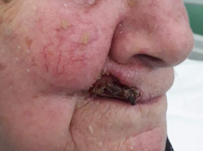 Cabinetul Fix Clinique - Epiteliom spinocelular la buza superioară