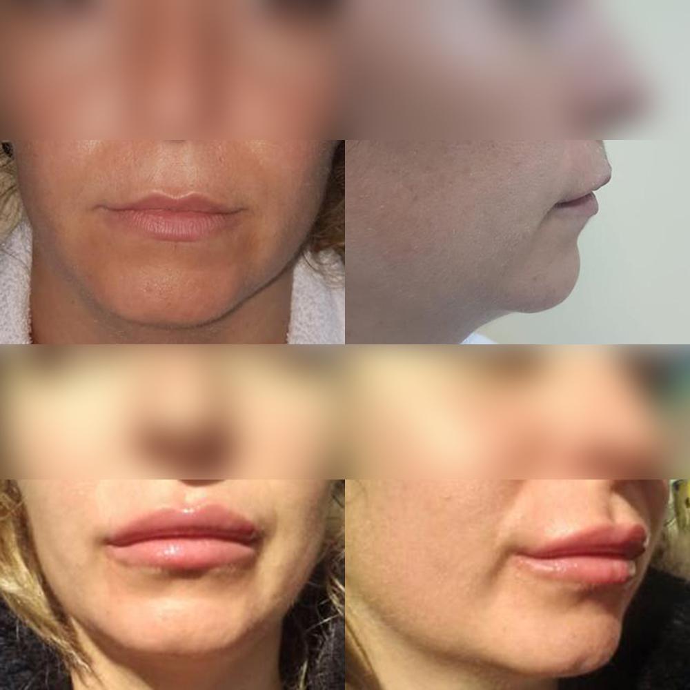 ofertă: Plătiți prețul implantului pentru o buză și beneficiați de implanturi pentru ambele buze