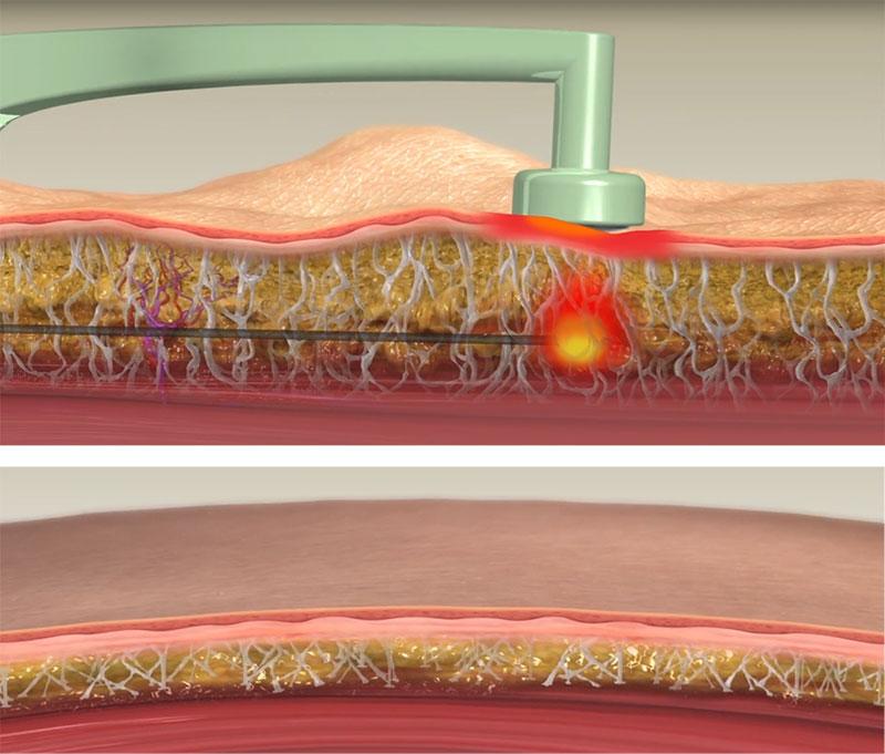 Procedura medical-estetică de înlăturare localizată a țesutului adipos persistent, fără proceduri excizionale, cu un rezultat eficient și o piele uniformă
